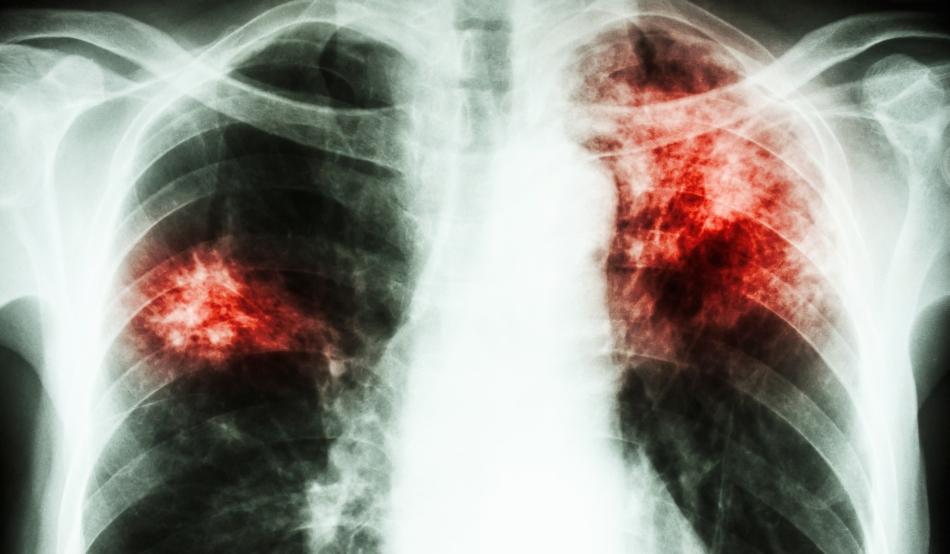 Tuberculoză